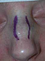 After hump reduction rhinoplasty.