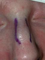 After osteotomies to narrow nasal bridge.
