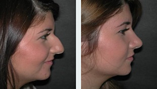 Rhinoplasty Case 1: Before & After
