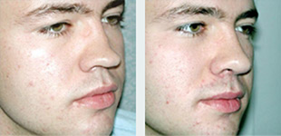 Rhinoplasty Case 10: Before & After