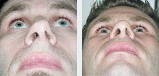 Rhinoplasty Case 11: Before & After
