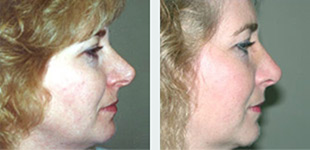 Rhinoplasty Case 2: Before & After