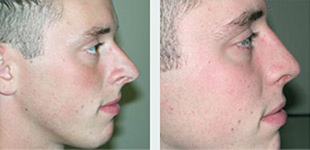 Rhinoplasty Case 3: Before & After