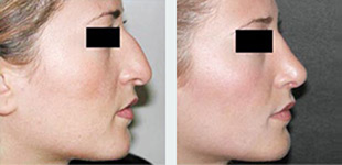Rhinoplasty Case 4: Before & After