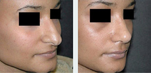 Rhinoplasty Case 5: Before & After