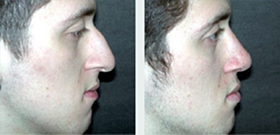 Rhinoplasty Case 6: Before & After
