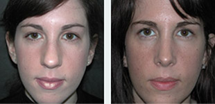 Rhinoplasty Case 7: Before & After