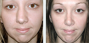Rhinoplasty Case 8: Before & After