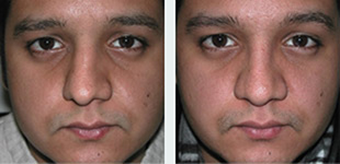Rhinoplasty Case 9: Before & After